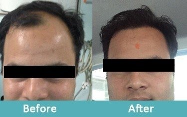 Skin Doctors In Lucknow