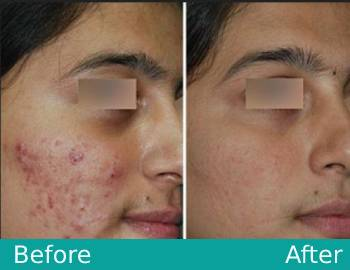 Acne Treatment in Lucknow